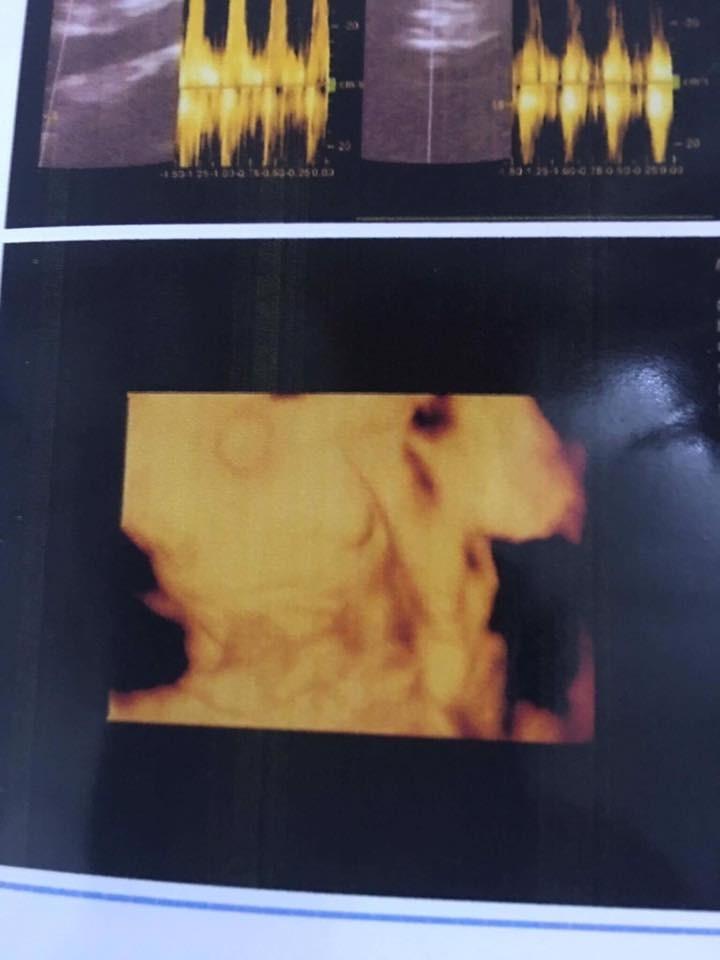 Hình ảnh siêu âm thai 31 tuần